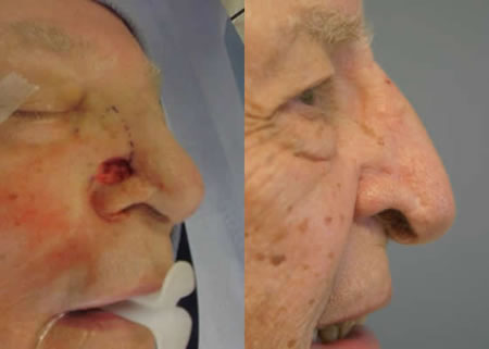 Treatment of nasal swelling x ray