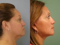 Before and After - Facelift