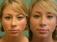Nasal Reshaping (3) - Before and After