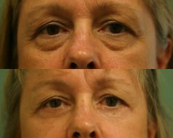 Lower Eyelid Lift - Before (top) and After